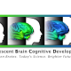 NIH Releases Adolescent Brain Development Data to Scientists