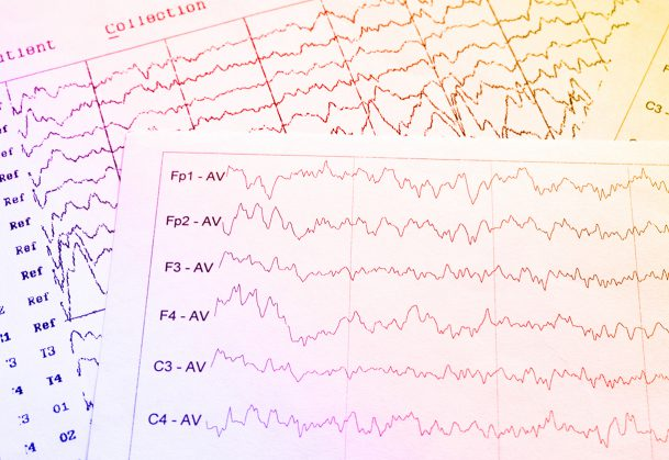 EEG monitoring of electrical activity of the brain