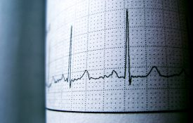 Sinus Heart Rhythm On Electrocardiogram